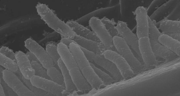 Cellule del batterio Xylella fastidiosa colonizzano un insetto