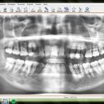Un dentista in Italia